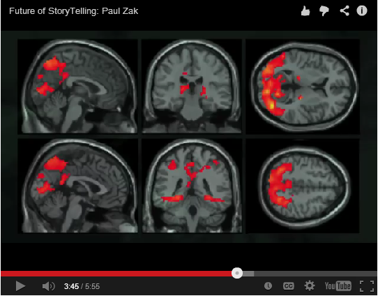 Ben's Dying From Cancer And His Story Will Change The Way YOUR Brain Works!
